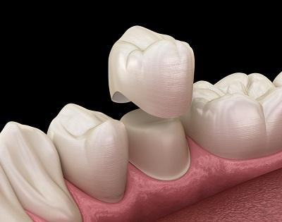 Crowns-Bridges-Dimos-Dental