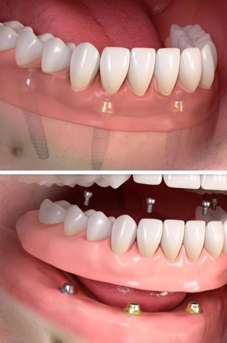 all on 4 dental implants melbourne vic