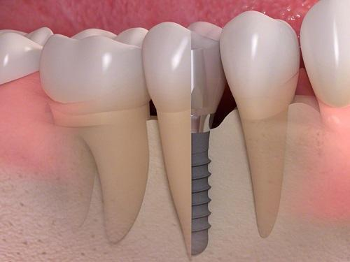 teeth replacement melbourne vic