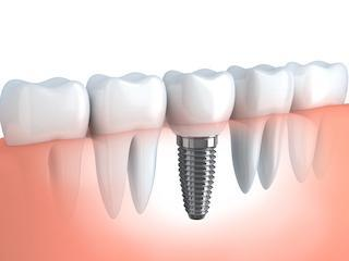tooth replacement melbourne cbd