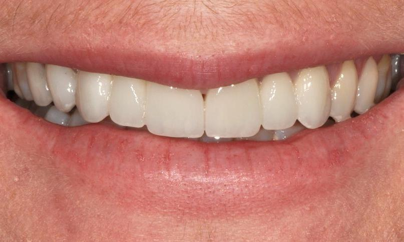 Missing, discoloured and acid eroded teeth