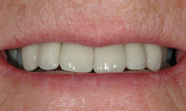 smile with porcelain crowns melbourne vic