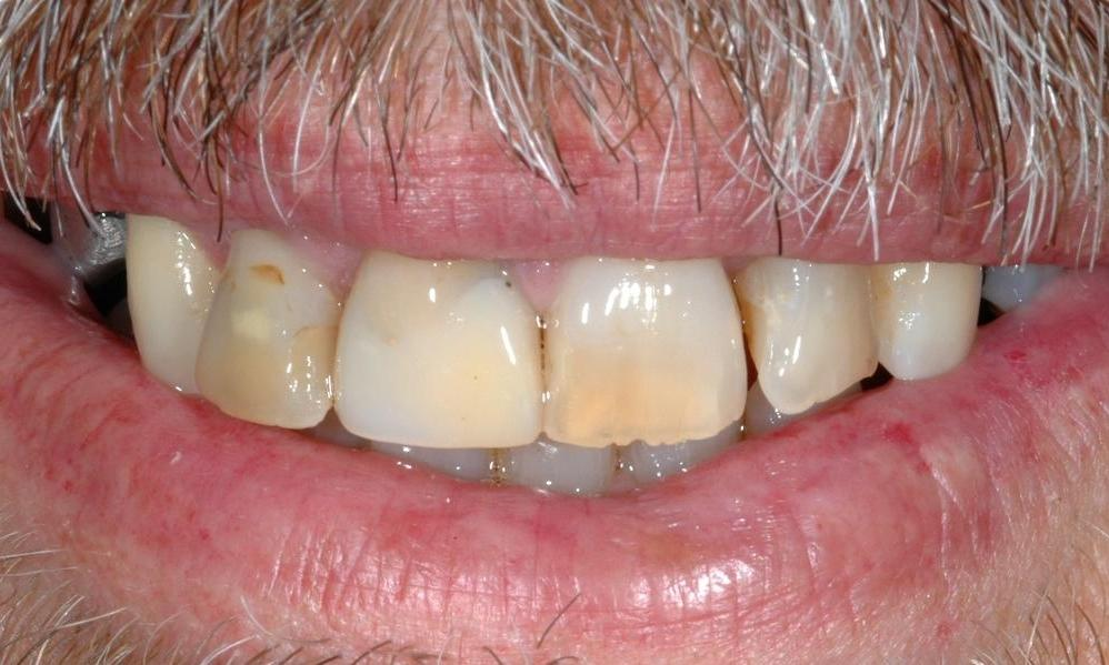discoloured teeth melbourne vic vic