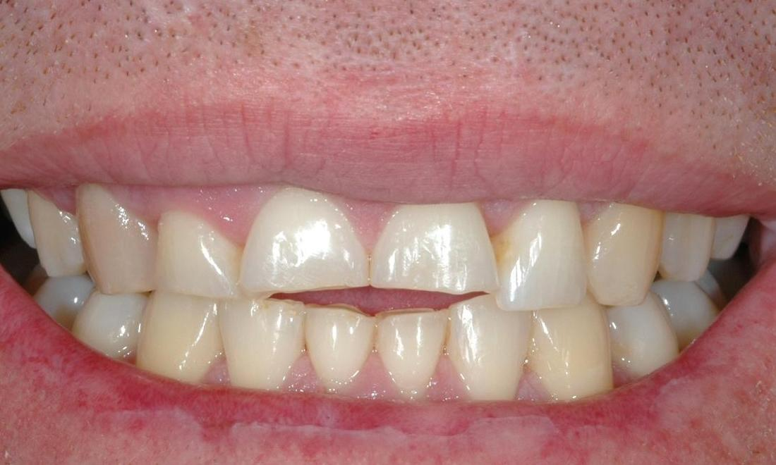 worn down teeth before treatment l orthodontist melbourne cbd