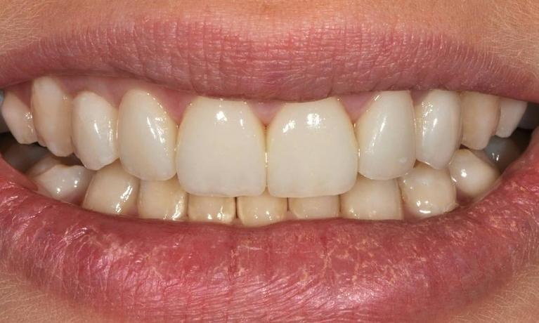 Discoloured-fillings-and-crooked-teeth-After-Image