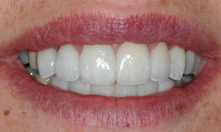 Worn-and-discoloured-teeth-and-fillings-After-Image