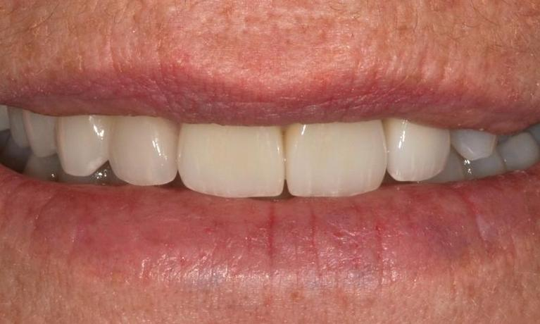 Worn-down-acid-eroded-discoloured-teeth-After-Image