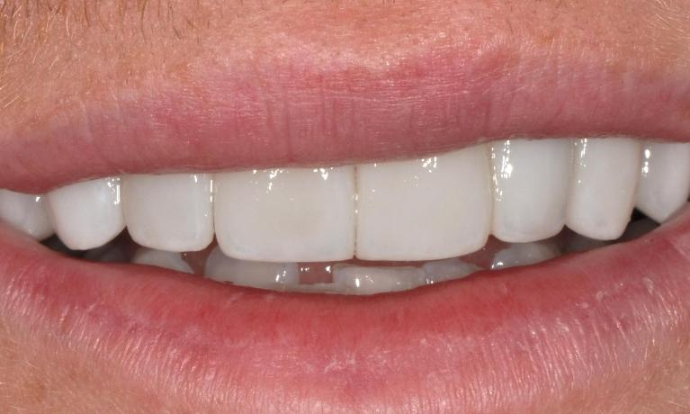 Broken-and-discoloured-front-teeth-Shape-and-colour-of-teeth-After-Image