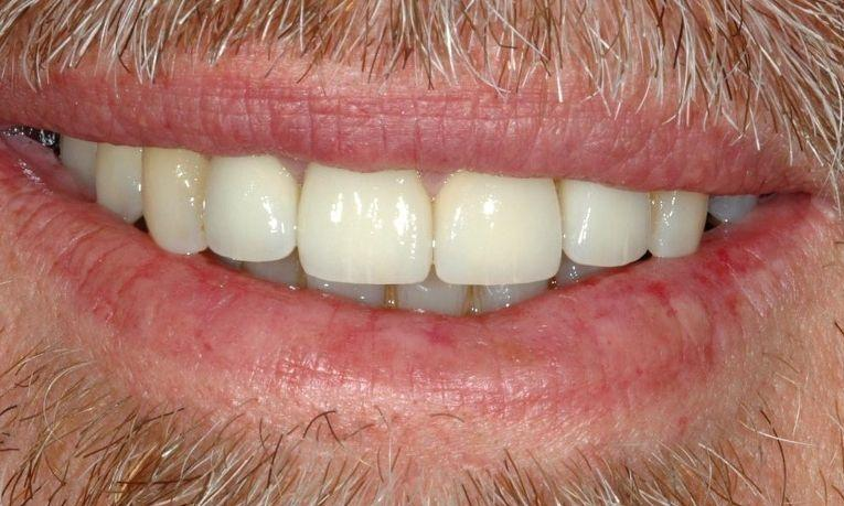 Missing-teeth-Discoloured-and-crooked-teeth-After-Image