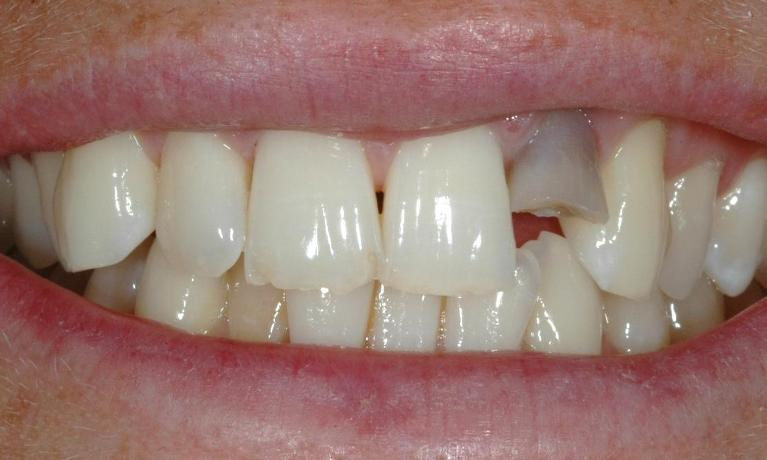 Broken-and-discoloured-front-teeth-Shape-and-colour-of-teeth-Before-Image