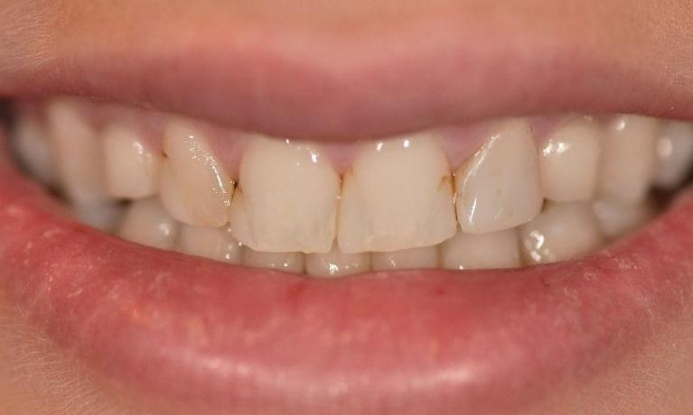 Discoloured-fillings-and-crooked-teeth-Before-Image
