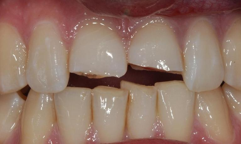 Fractured-teeth-due-to-an-accident-Before-Image