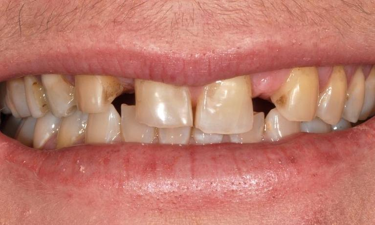 Missing-discoloured-and-acid-eroded-teeth-Before-Image