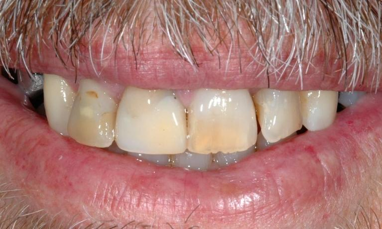 Missing-teeth-Discoloured-and-crooked-teeth-Before-Image