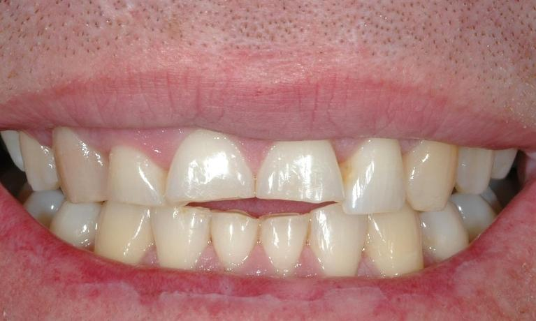Short-worn-down-teeth-Before-Image