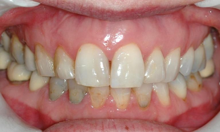 Worn-and-discoloured-teeth-and-fillings-Before-Image