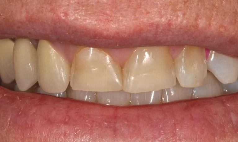Worn-down-acid-eroded-discoloured-teeth-Before-Image